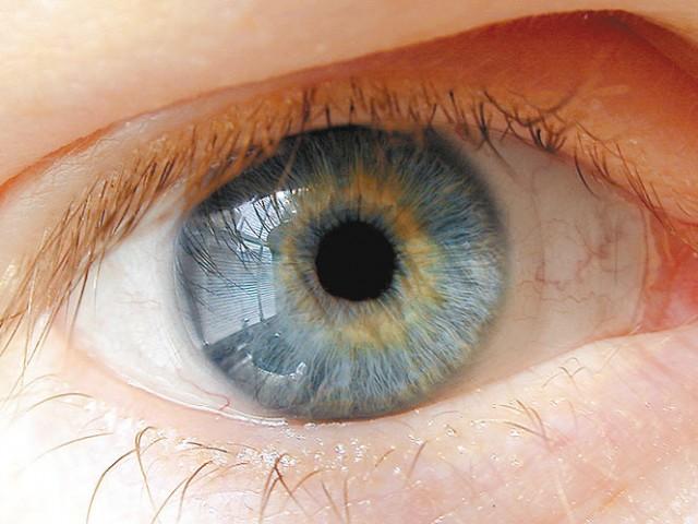 irisdijagnostika-eye2314